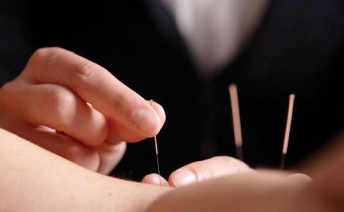 Akupunktúra: a legősibb természetes gyógymód